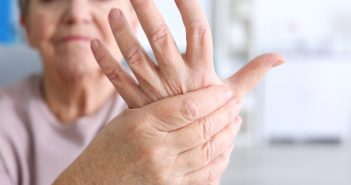 Senior with rheumatoid arthritis