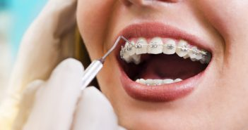 Young woman checking her braces